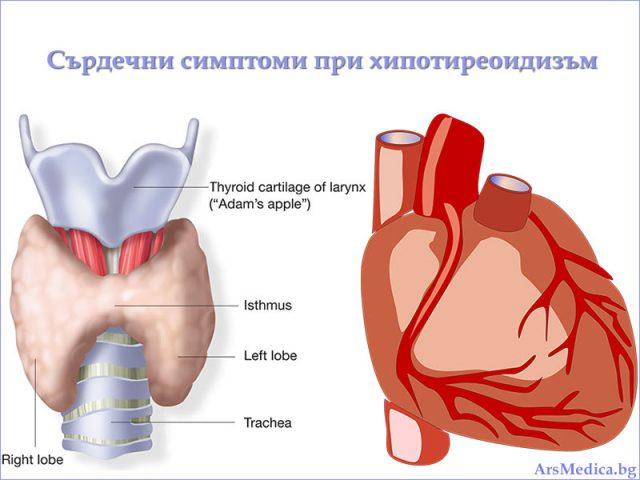 сърдечни симптоми при хипотиреоидизъм