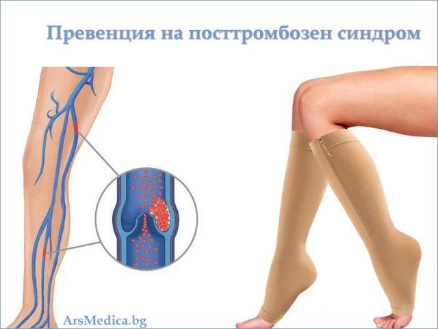 посттромбозен синдром - превенция