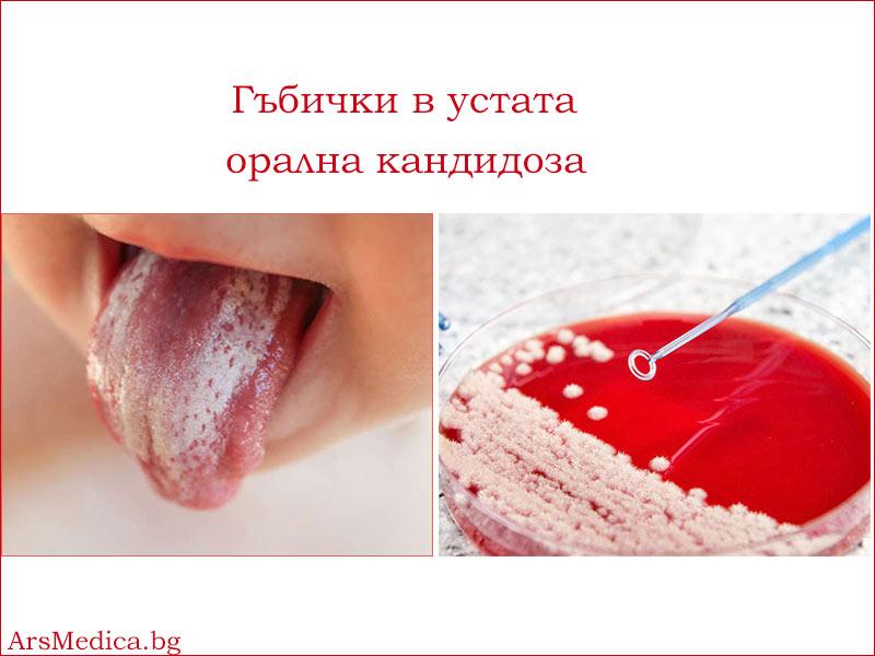 гъбички в устата