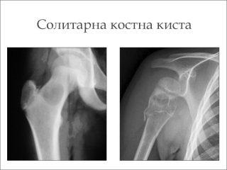 Костна киста (солитарна киста на костта)