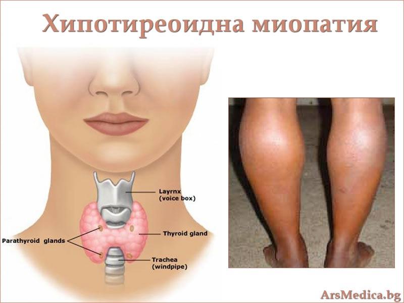 мускулите при хипотиреоидизъм