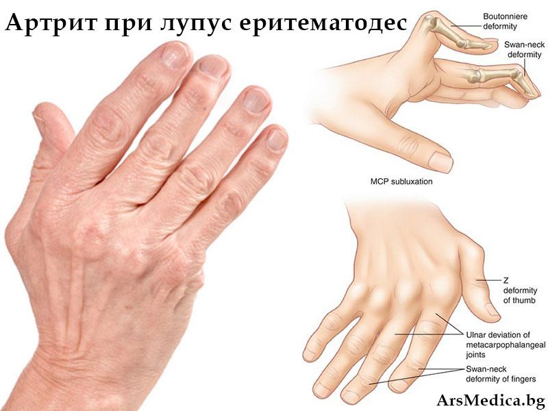 артрит при лупус еритематодес